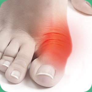 Операция на косточке большого пальца ноги лазером