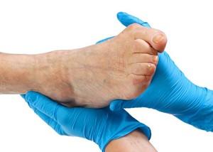Косточки на ногах  симптомы и лечение