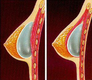пластическое увеличение груди