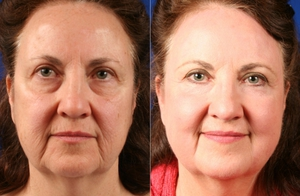 Эффект от фотоомоложения лица: фото до и после