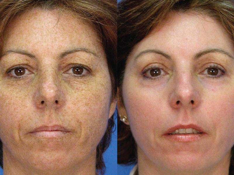 Лазерное омоложение лица - фото до и после.jpg
