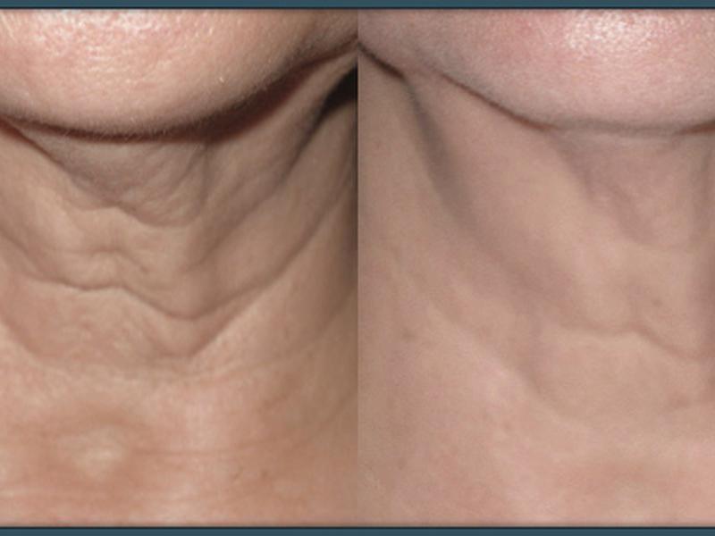 Избавление от морщин на шее при помощи фотоомоложения