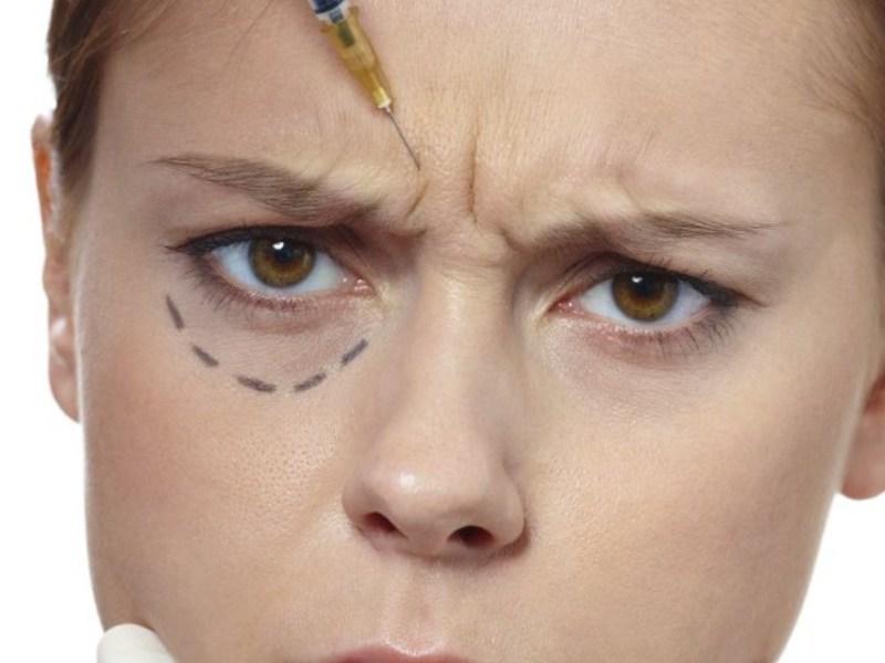 Ботокс в область глаз, устранение морщин у глаз ботоксом