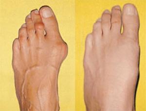 Кости на ногах выпирают лечение фото