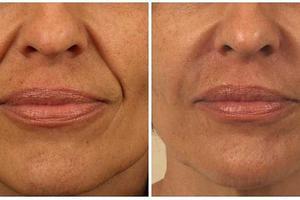 Коррекция и увеличение губ