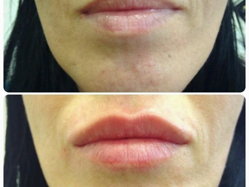 Увеличение губ гиалуроновой кислотой по контуру губ