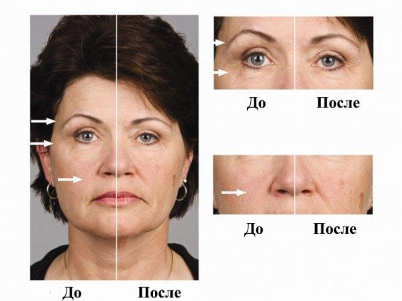микротоки для лица фото до и после