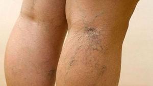 Медикаментозное лечение варикоза нижних конечностей
