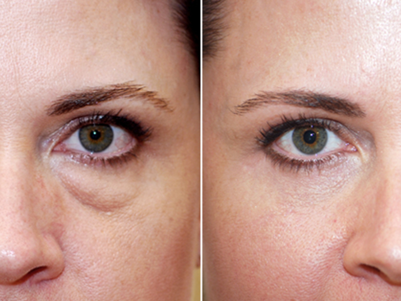 Операция при глаукоме когда и зачем нужно