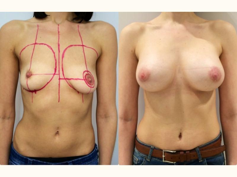 Большая силиконовая грудь онлайн