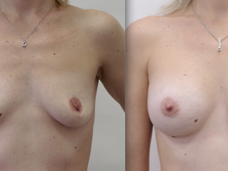 Отзывы по увеличению груди евромед клиника