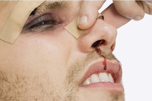 Сломан нос