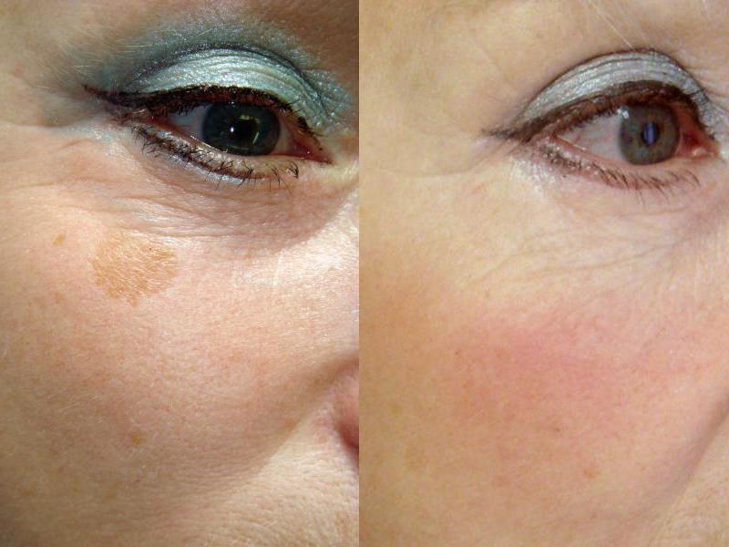 Удаление татуировок лазером до и после фото