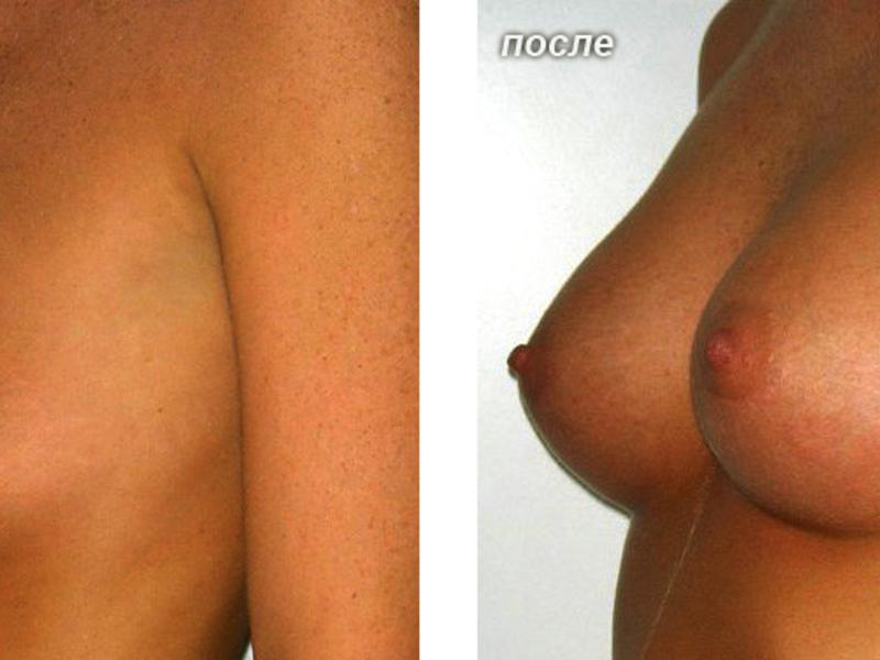 сколько стоит увеличение груди в красноярске