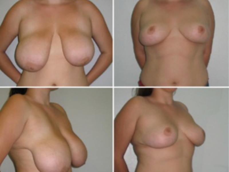 увеличение груди проблемы