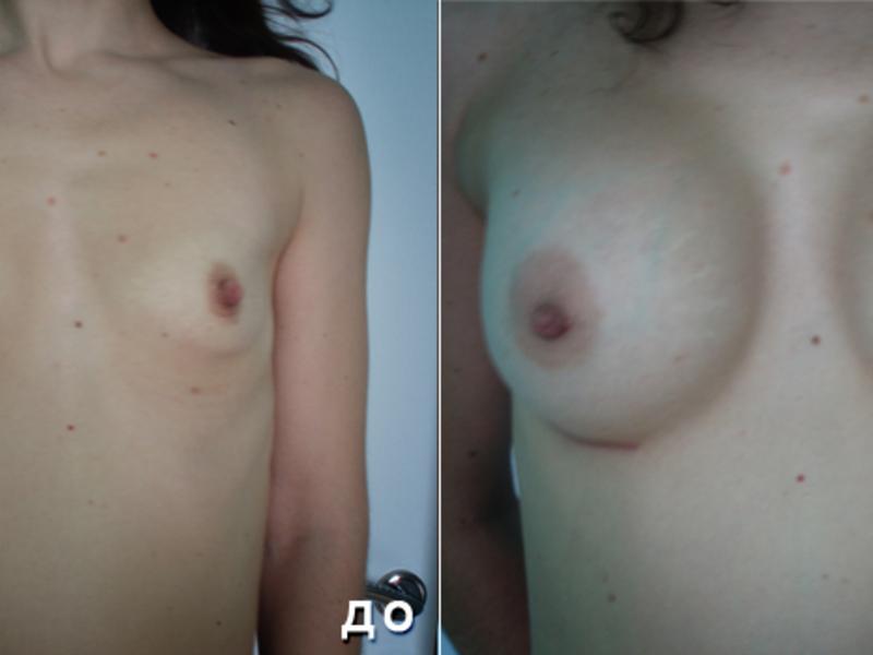 Рейтинг кремов для груди