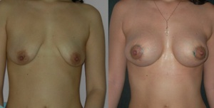 До и после подтяжки груди.