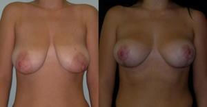 Операция по увеличению и подтяжке груди м