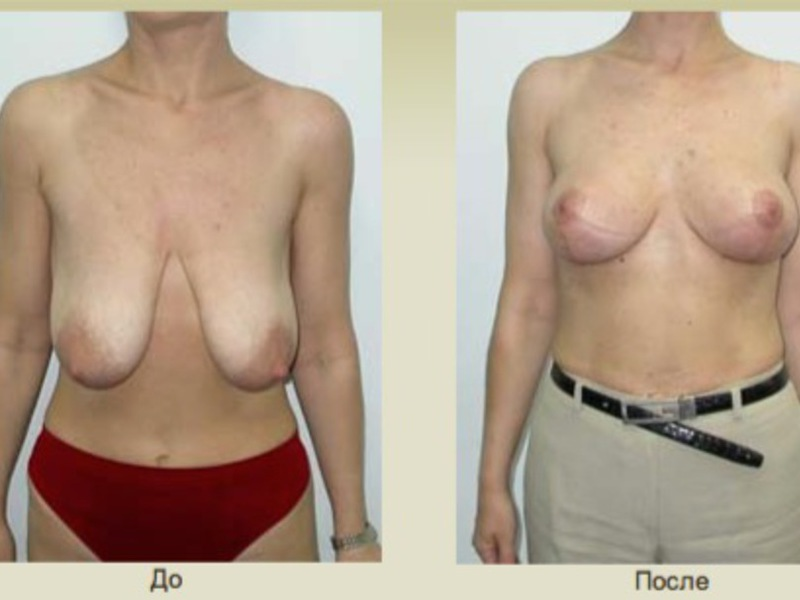 Противопоказания к операции подтяжки груди