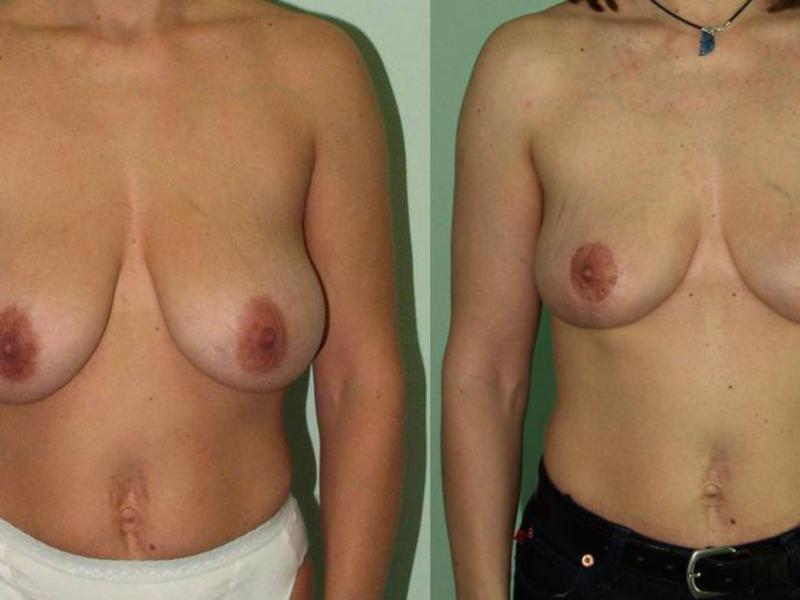 Как протекает операция по подтяжке груди