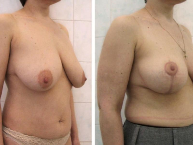 Операция по увеличению и подтяжке груди