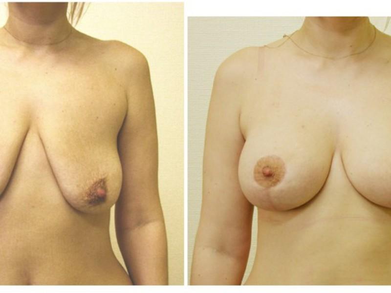 Коррекция грудной железы