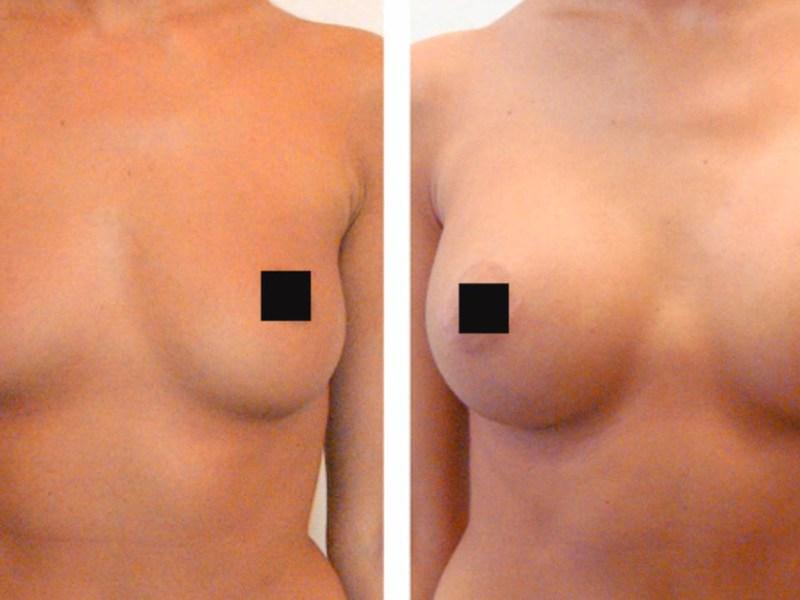сделать протез груди