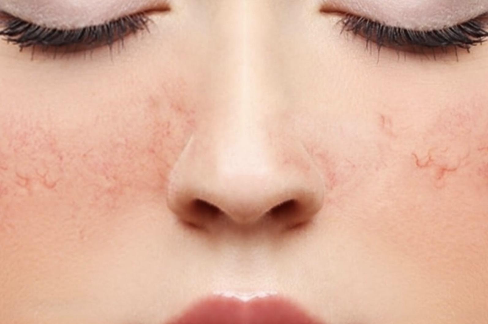 Легче предотвратить: 5 способов не допустить сосудистых звездочек на лице
