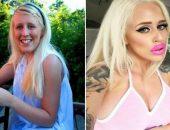 Алисия Амира до и после пластики