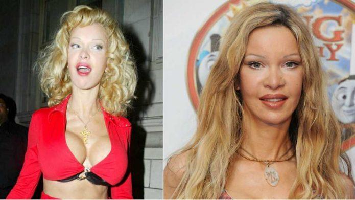 Алисия Дюваль до и после пластики