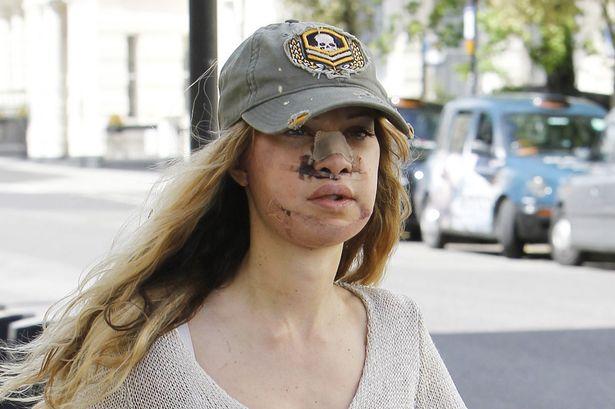 Алисия Дюваль после удаления лицевых имплантов