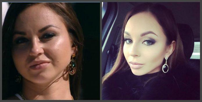 Анастасия Лисова до и после пластики лица