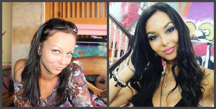 Анастасия Лисова до и после пластики скул