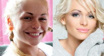 Анна до и после коррекции губ