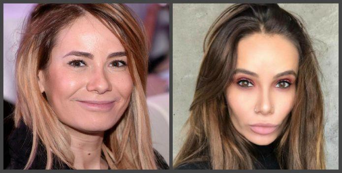 Айза Анохина до и после пластики