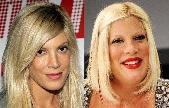8 актрис, которые загубили свою карьеру пластикой