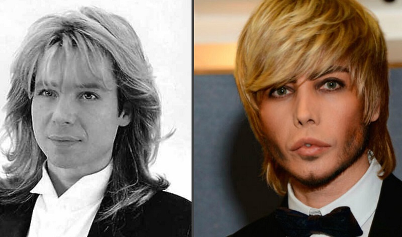 8 знаменитостей, которые «сделали» себе нос
