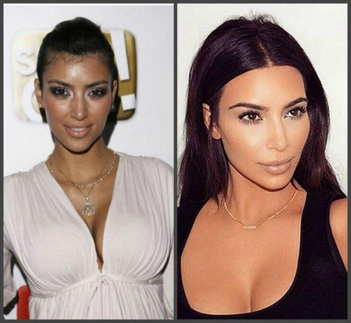 Черты лица Ким Кардашьян до и после пластики