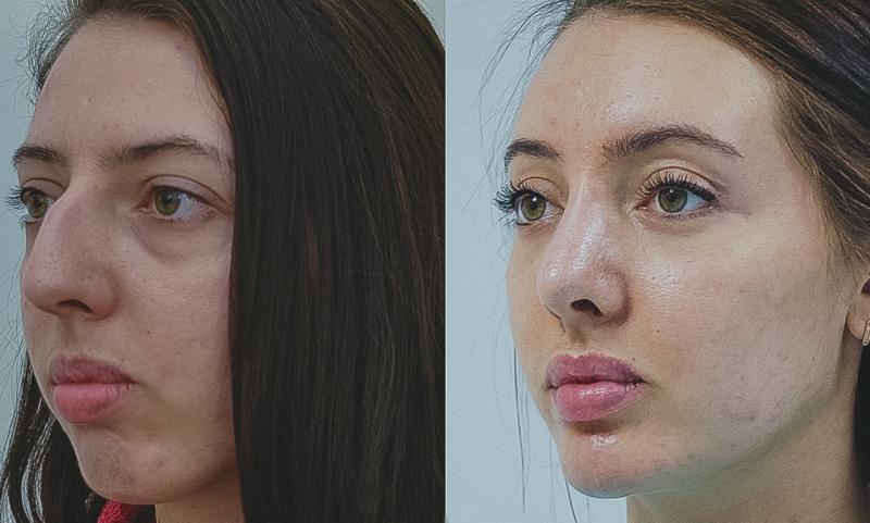 Волшебство преображения: 30 фото женщин до и после ринопластики