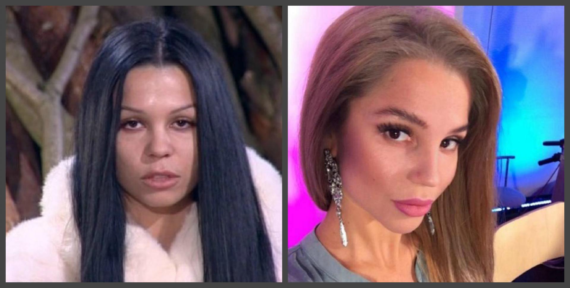Екатерина колесниченко до и после пластики фото