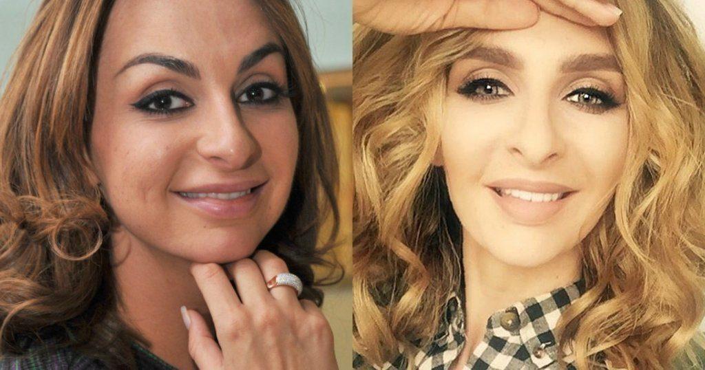Эротика фото катя варнава до и после пластики вагины члена