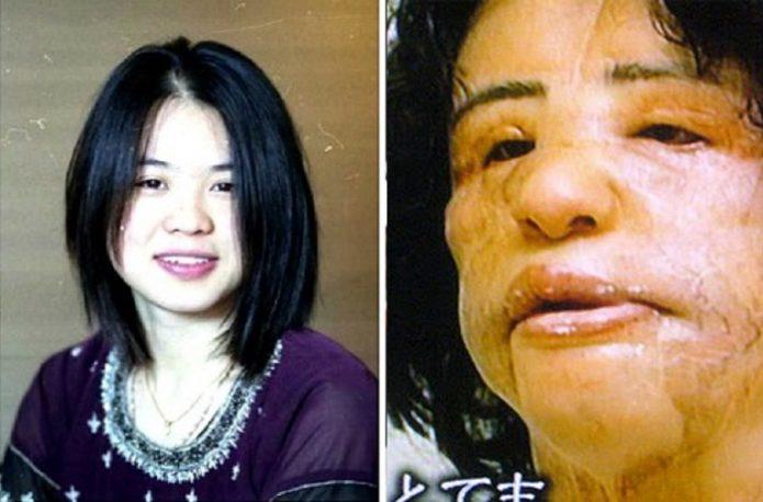 Фото Ханг Миоку до и после