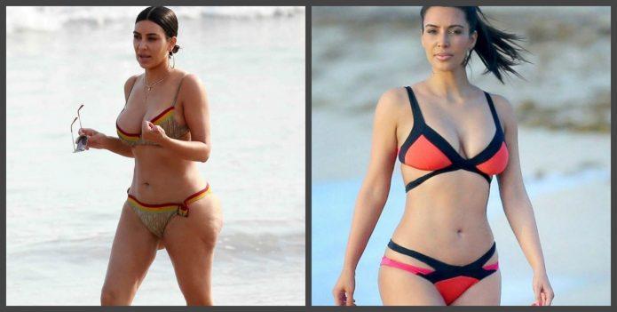 Фигура Ким Кардашьян до и после пластики