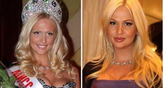 Фото до и после пластики носа
