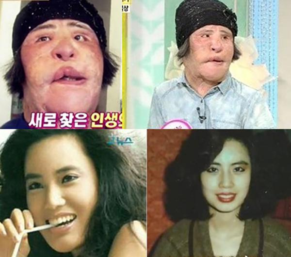 Фото Ханг до и после