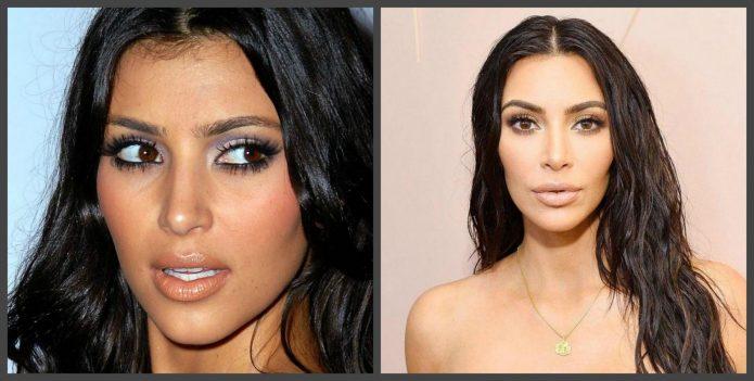 Губы Ким Кардашьян до и после пластики
