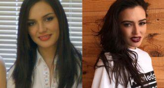 Губы Ольги: фото до и после