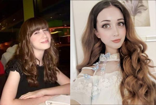 Ханна Грегори фото до и после