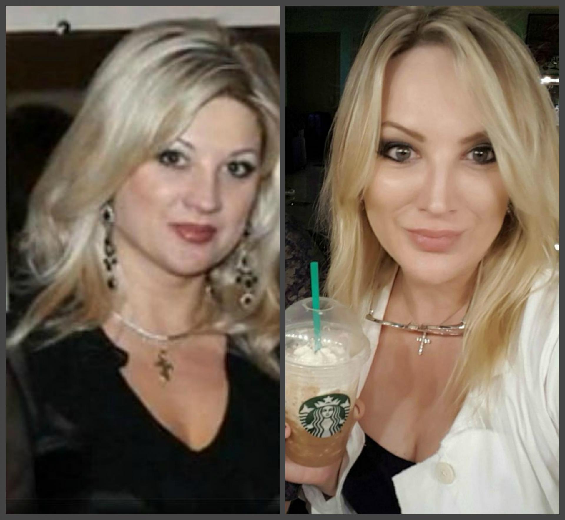 Инна михайлова до и после пластики фото
