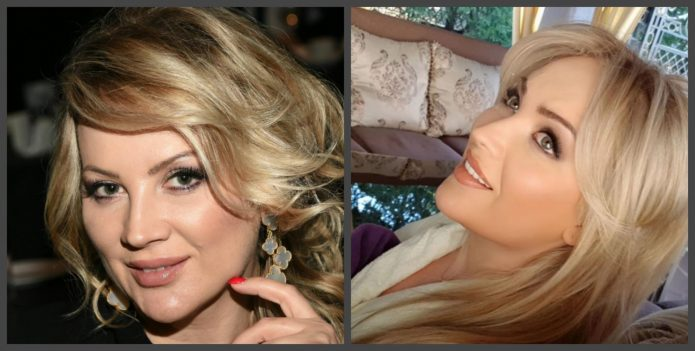 Инна Михайлова до и после пластики